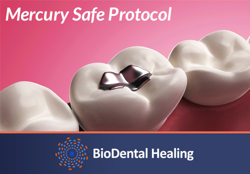 mercury safe protocol to replace amagalm fillings