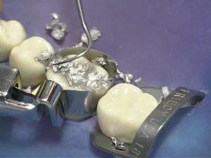 amalgam filling removal
