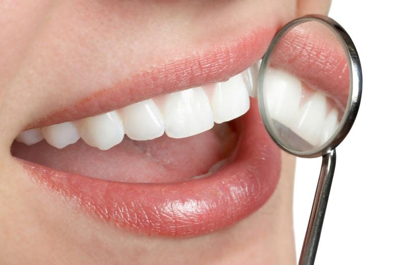 fluoride-free dentistry